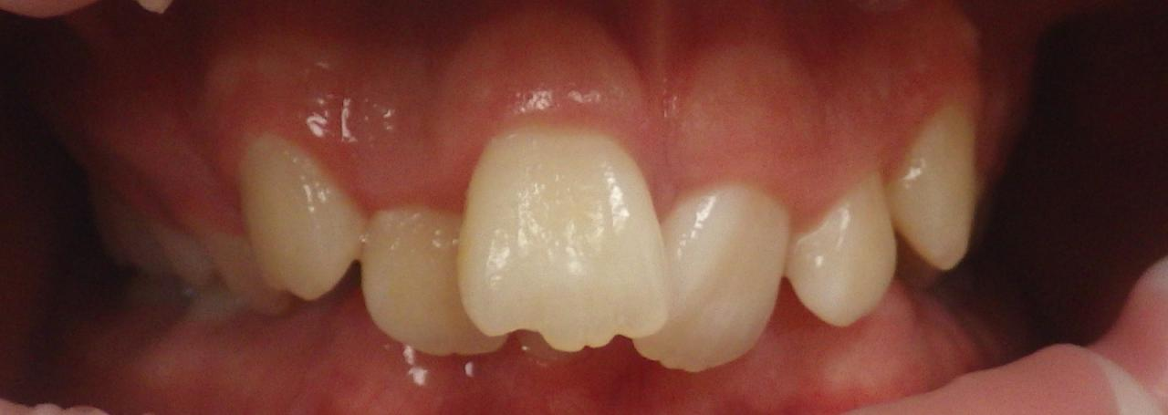 Fastbraces®   Capital Dental